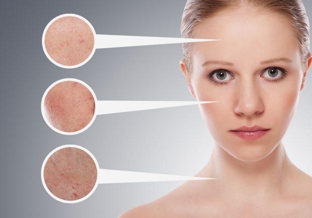 KUJDES/ Këto 6 ushqime ndikojnë tek hormonet tona dhe na shkatërrojnë lëkurën