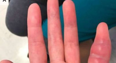 HABITEN MJEKËT/ Zbulojnë infeksionin e rrallë në gishtin e gruas (FOTO)