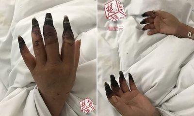 TRONDITËSE/ Nxirja e duarve të 53-vjeçares lidhet me sëmundjen e rëndë