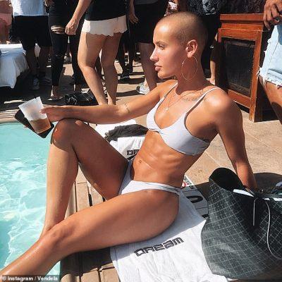 """""""NDIHEM MË E FUQISHME…""""/ Kjo është modelja e parë e """"Playboy"""" pa flokë (FOTO)"""