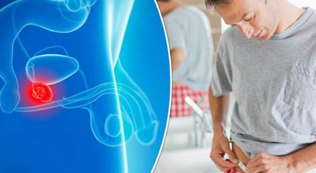 STUDIMI I FUNDIT/ Kjo është pija që po ul ndjeshëm rrezikun nga kanceri i prostatës