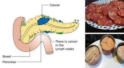 MOS I KONSUMONI MË/ Këto janë ushqimet që shkaktojnë kancer