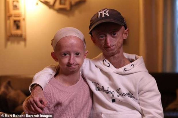 MOTËR E VËLLA ME GJENDJEN E RRALLË/ Janë të rinj por duken shumë të moshuar (FOTO)