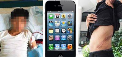 """HISTORIA QË TRONDITI VENDIN/ Shiti veshkën për të blerë iPhone, 25-vjeçari mbetet """"gjysmë njeri"""""""