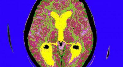STUDIMI/ Alzheimer mund të diagnostikohet 10 vite përpara