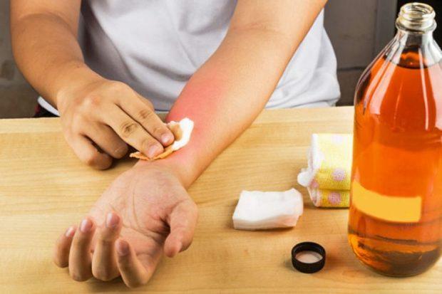 UTHULLA E MOLLËS/ Si ta përdorni kundër dhimbjeve të reumatizmës