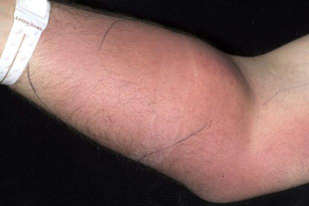 E PAZAKONTË/ Prej 18 muajsh, një burrë injektonte spermë në krah