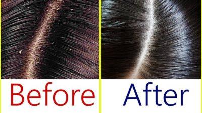 VETËM ME KËTO PËRBËRËS/ Thuajini lamtumirë zbokthit dhe rënies së flokëve