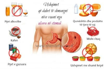 NGA MISHI TEK QUMËSHTI/ Ushqimet që duhet të shmangni nëse vuani nga ulcera në stomak