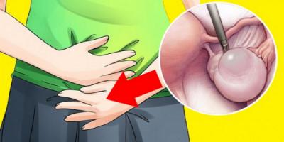 NGA LODHJA TEK TË VJELLAT/ Shenjat paralajmëruese të kisteve që tregojnë se keni nevojë për mjek