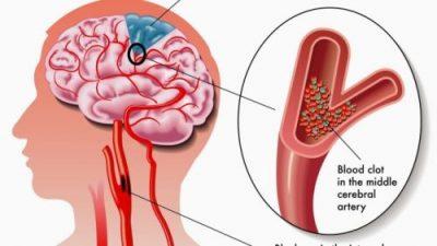 MOS I INJORONI/ Ja shenjat që paralajmërojnë goditjen në tru