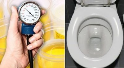 KUJDES/ Nëse urina juaj ka këtë ngjyrë, shkoni menjëherë tek mjeku