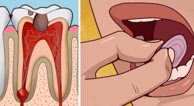 BRENDA 5 MINUTAVE/ 7 metoda efikase si ta qetësoni dhimbjen e dhëmbit