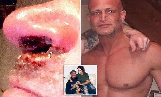E KONSUMONTE RREGULLISHT/ Përdoruesi i kokainës rrëfen se si droga i shkatërroi hundën