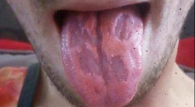 PAMJE SHOKUESE/ Ja çfarë i shkaktoi gjuhës së këtij personi konsumi i pijeve energjike