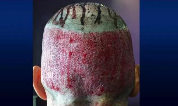 DO SHOKOHENI/ Mjekët publikojnë foto të dështimit të operacioneve për mbjelljen e flokëve
