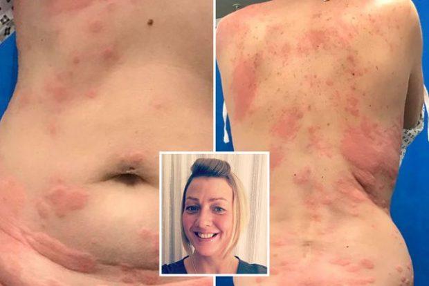 """""""TRUPI IM MORI FLAKË DHE… """"/ 42-vjeçarja zbulon alergjinë nga cigarja elektronike"""
