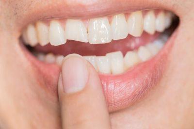 NËSE NUK PASTRONI GURËZAT/ Do të habiteni se çfarë mund t'i ndodhi dhëmbëve tuaj