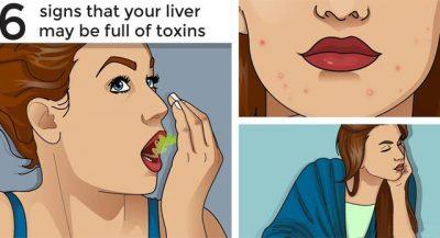 MËSONI SI TI DALLONI/ 6 shenjat që tregojnë se mëlçia juaj është e tejmbushur me toksina