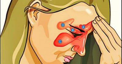 NGA LODHJA TE USHQIMI I VARFËR/ Kushtet klimatike ndikojnë në inflamacionin e sinuseve
