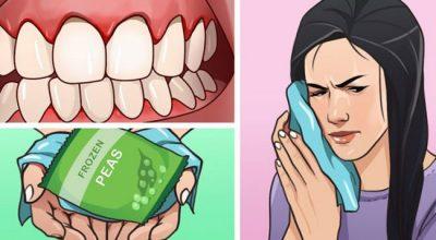 NGA   QEPA TEK…/ 6 mënyra natyrale si të qetësoni dhimbjen dhe ënjtjen e mishrave të dhëmbëve