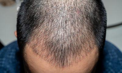 E TMERRSHME/ Vdes pas operacionit të transplantit të flokëve