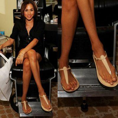 HALLUX VALGUS/ Ja çfarë duhet të dini për deformimin e zakonshëm të këmbës