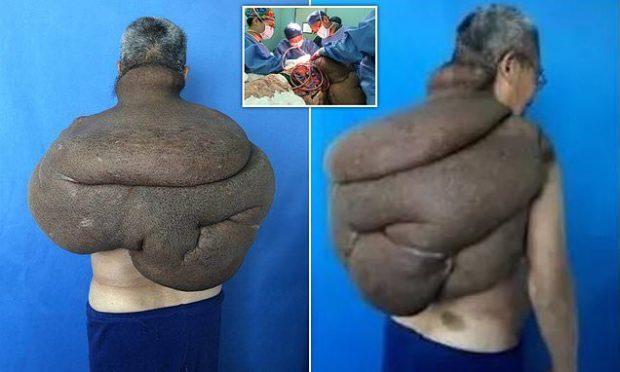 TUMORI KANCEROZ I MBULOI KURRIZIN/ Asnjë mjek nuk pranonte ta operonte 68 vjeçarin