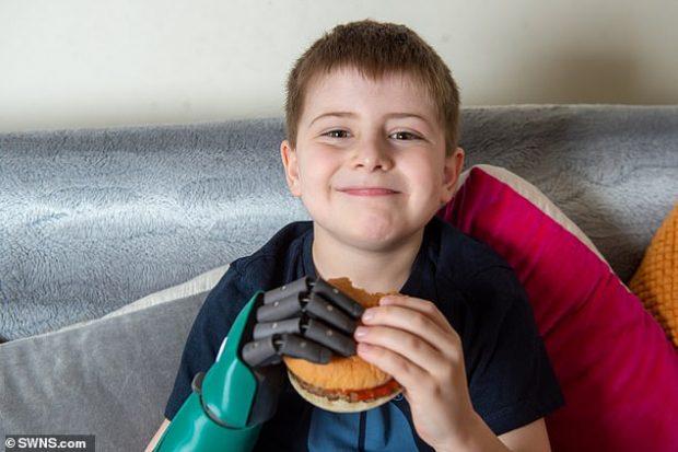 TANI MUND TË HAJË HAMBURGER…/ 8-vjeçarit i ndryshon jeta pasi i vendosin protezën që…