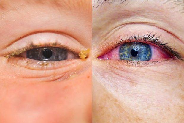 ALERGJI APO INFEKSION? Si të kuptoni nëse sytë e kuq vijnë nga diçka më tepër se sa thjesht fërkimi