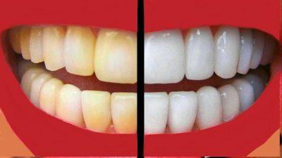 MËSOJINI TANI/Pesë rregullat e arta për dhëmbë të bardhë dhe të pastër