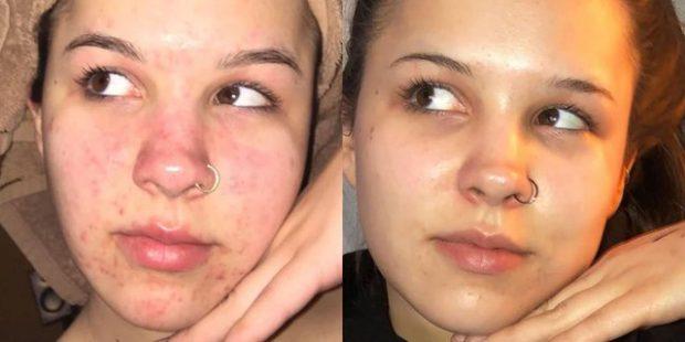 MËSOJINI TANI/ 3 mënyrat më efektive për të kuruar të gjitha llojet e akneve në fytyrë