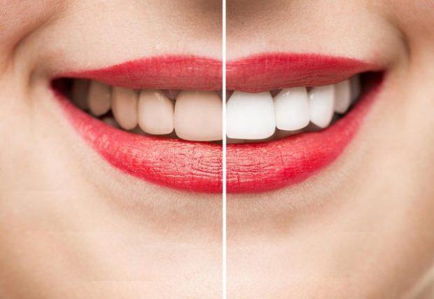 FUNKSIONON MENJËHERË/ Ja receta e vetme natyrale për dhëmbë të bardhë