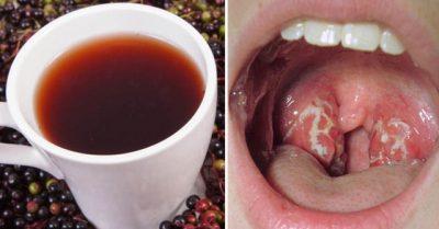 MJAFT U DENDËT ME ANTIBIOTIKË/ Këto janë kurat natyrale për grykët e qelbëzuara dhe të inflamuara