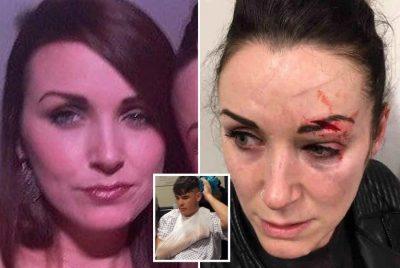 """U FRIKËSUA PËR VDEKJE/ Gruaja rrëfen si e """"masakroi"""" 19-vjeçari në koncert"""