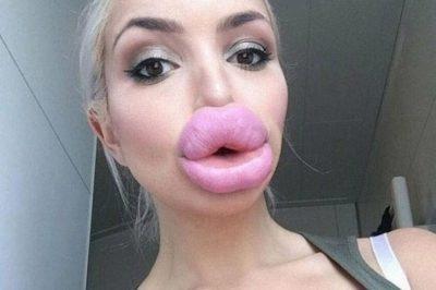 FOTOT VIRALE/ Ky është trendi i rrezikshëm i buzëve që po qarkullon mes vajzave së fundmi
