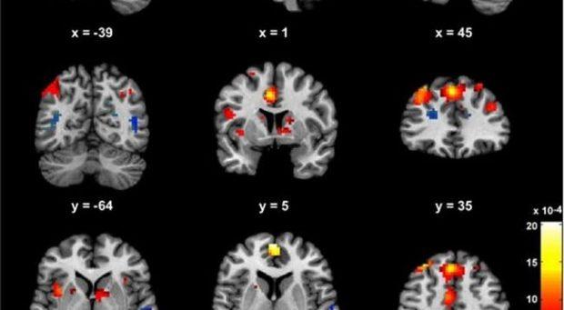 STUDIMI/ Mjekësia tregon përfundimisht efektet afatgjate që shkakton marihuana në tru