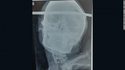 E PABESUESHME/ Shufra e hekurit i përshkoi kokën tej për tej, shpëton mrekullisht (FOTO)