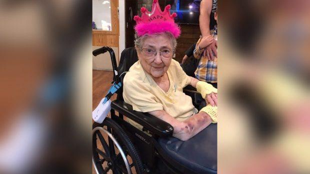 PA E DITUR FARE/ Gruaja jeton 99 vite me të gjitha organet në vendin e gabuar