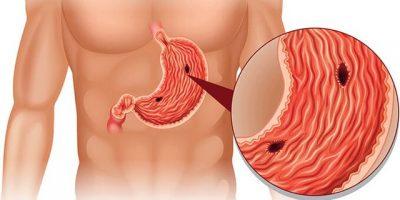 MËSOJINI TANI/ Ushqimet që duhet të hani nëse vuani nga ulcera në stomak
