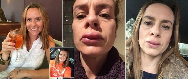 """""""BUZËT E MIA PO SHPËRTHENIN""""/ 42-vjeçarja pëson alergjinë e tmerrshme (FOTO)"""