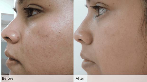 VETËM DUKE NDENJUR NË SHTPI/ Mënyrat më të mira për të rigjeneruar një fytyrë të dëmtuar