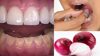 NGA PËRVOJA E GJYSHEVE/ Si të trajtoni në kushte shtëpie të gjitha problemet me gojën