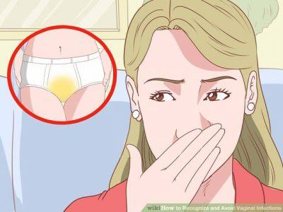 TRAJTIMET NATYRALE/ Kurojnë infeksionet vaginale pa qenë nevoja të merrni antibiotikë