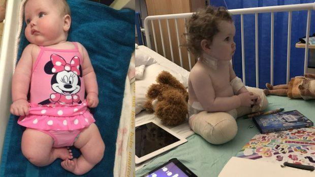 E TRISHTË/ Prindërit firmosin prerjen e këmbëve të vogëlushes që ajo të mund të ecë një ditë