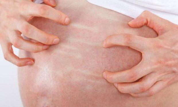 NGA VARIÇET  DERI TEK NJOLLAT KAFE/ Këto janë ndryshimet që i ndodhin lëkurës suaj gjatë 9 muajve të shtatzënisë