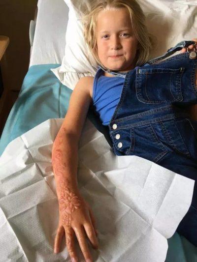 E DHIMBSHME/ Vogëlushja humb lëkurën nga tatuazhi i përkohshëm (FOTO)
