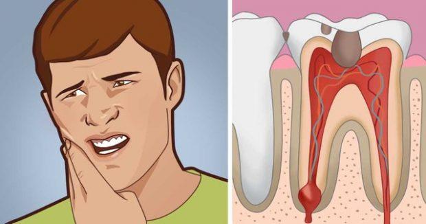 AKULL, KARAFIL, KRIPË DHE PIPER/ Asgjë më shumë për qetësimin e dhimbjes së dhëmbëve në shtëpi
