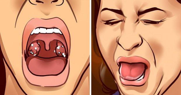NUK ËSHTË FAJI I HIGJENËS/ Ja 3 shkaktarët e erës së keqe të gojës