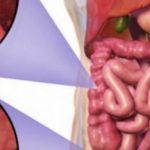MOS I NEGLIZHONI ASNJËHERË/ Simptomat e para të kancerit të zorrës së trashë